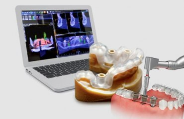 Лікування зубів лазером